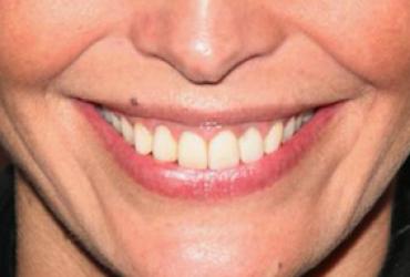 Ortodoncista de vocación